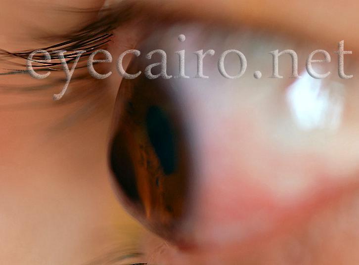 keratoconus treatment at dr khalil eye clinic in Cairo