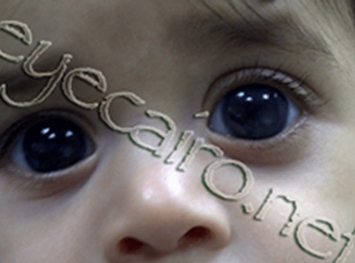 congenital glaucoma treatment and surgery at dr khalil eye clinic in cairo