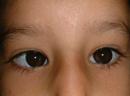 squint or strabismus surgery at dr khalil eye clinic in cairo